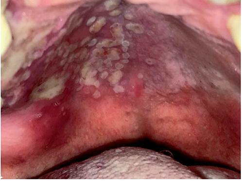 Oral sores: a rare presentation of Herpes zoster | Geriatric Care