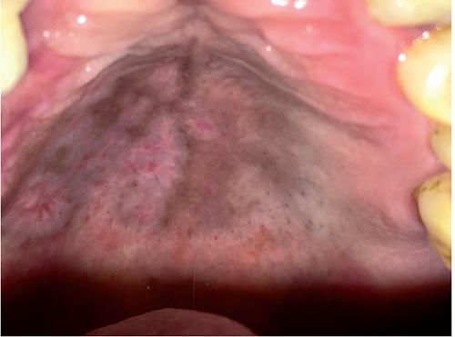 Oral sores: a rare presentation of Herpes zoster | Geriatric