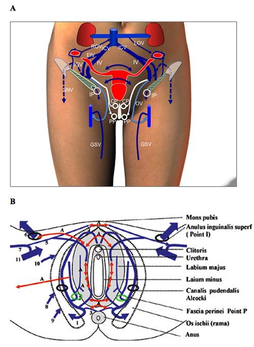varicoză ulcere pe picioare fotografie varicoză operațiune în vinnitsa